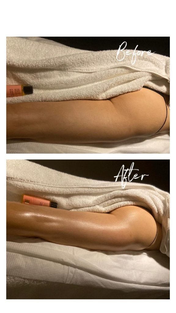 Cellulite before after the cultface
